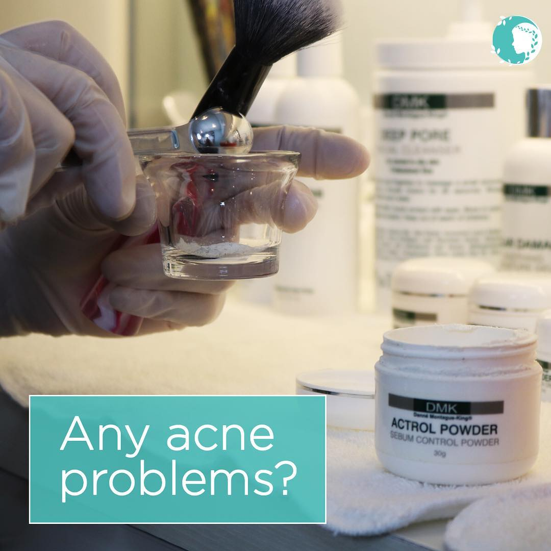 Actrol Powder and Acne
